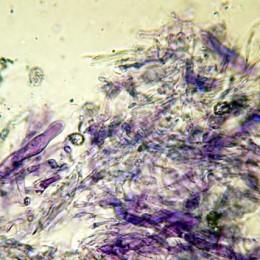 pileocistidi